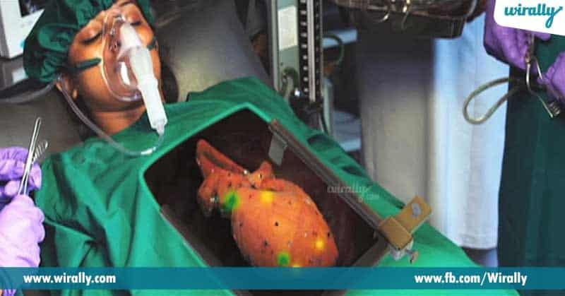 1.-Heart-transplantation
