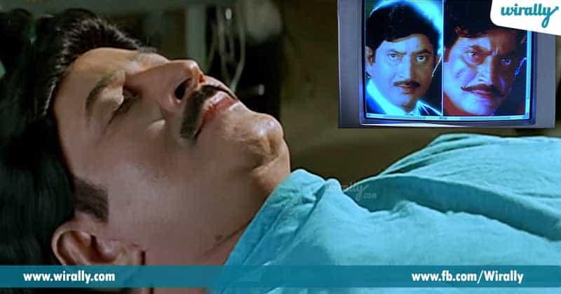 2.-Face-Transplantation