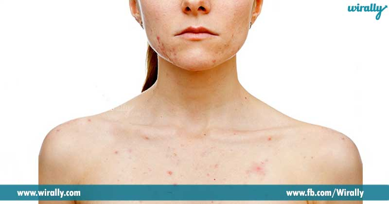 9-Makes-you-get-rid-of-skin-problems