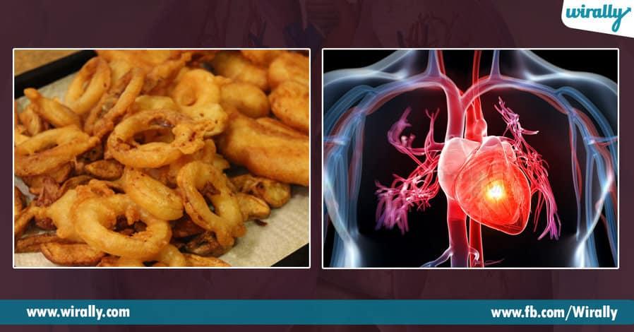 5 Heart ni debba teese food