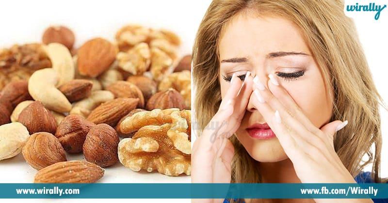 food allergys
