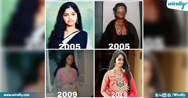 Real Story Behind Deepika Chhapaak