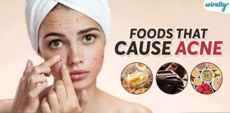 Food That Cause Acne