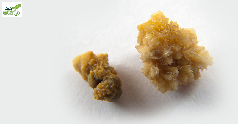 sistine stones