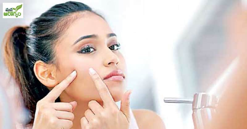 Easy home tips to get rid of pimples