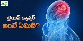 causes of brain cancer