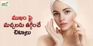 Home Remedies To Reduce Blackheads