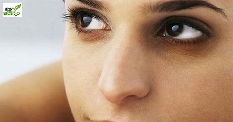 Home Tips for Reducing Dark Circles