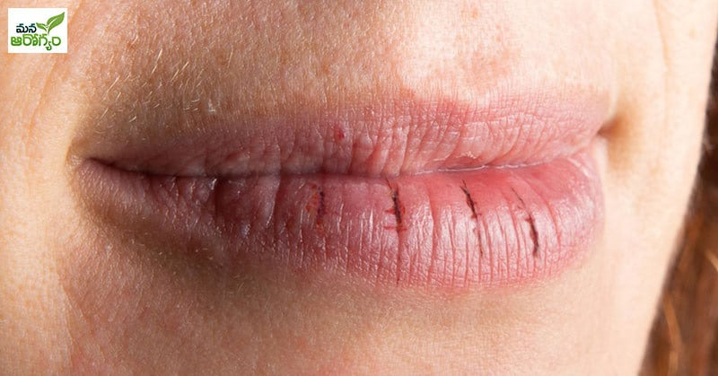 protect the lips from cracking in winter