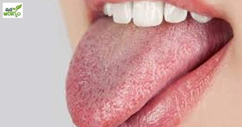 tips are essential for the prevention of bad breath