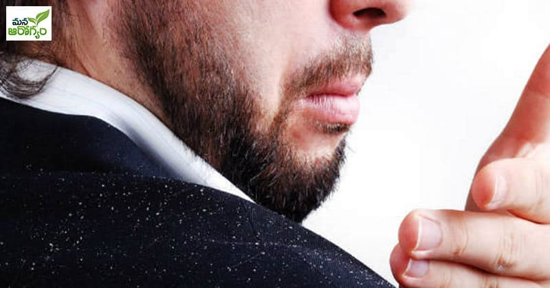 Tips to prevent dandruff in winter