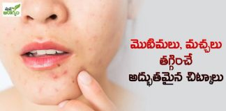 Home Remedies To Reduce Acne And Scars