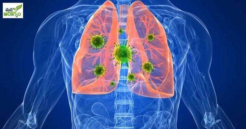 diagnose a lung infection