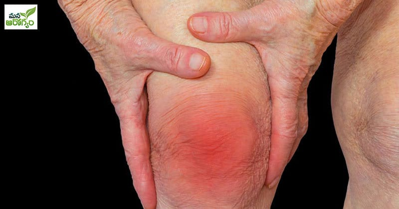 What are the possible causes of arthritis