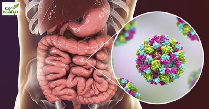 Symptoms Of a Norovirus Infection
