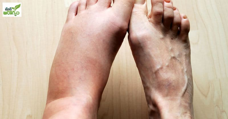 Problems Caused By Swelling In The Legs