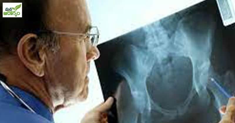 Bone Death Problems In Corona Patients